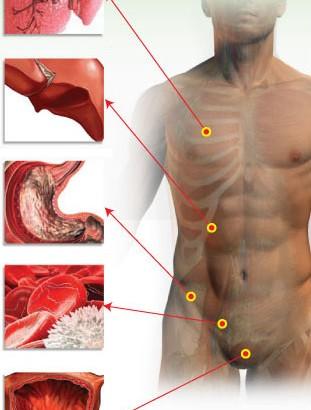 detoxification-emonctoire